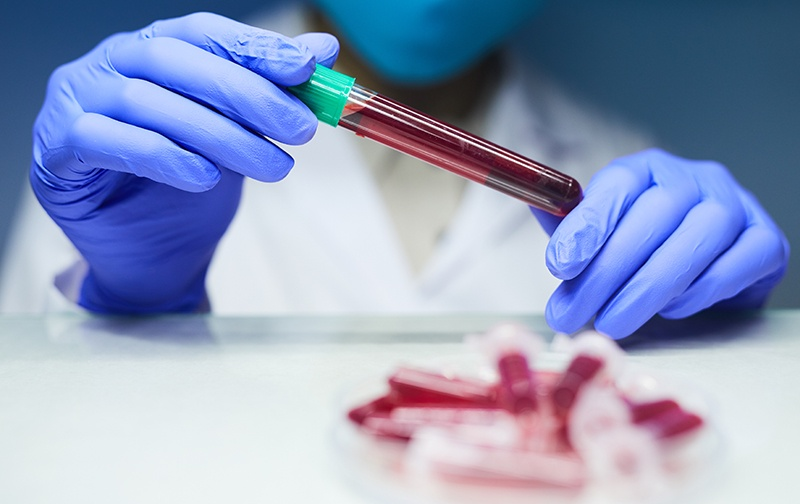 a simple blood test to detect lung cancer
