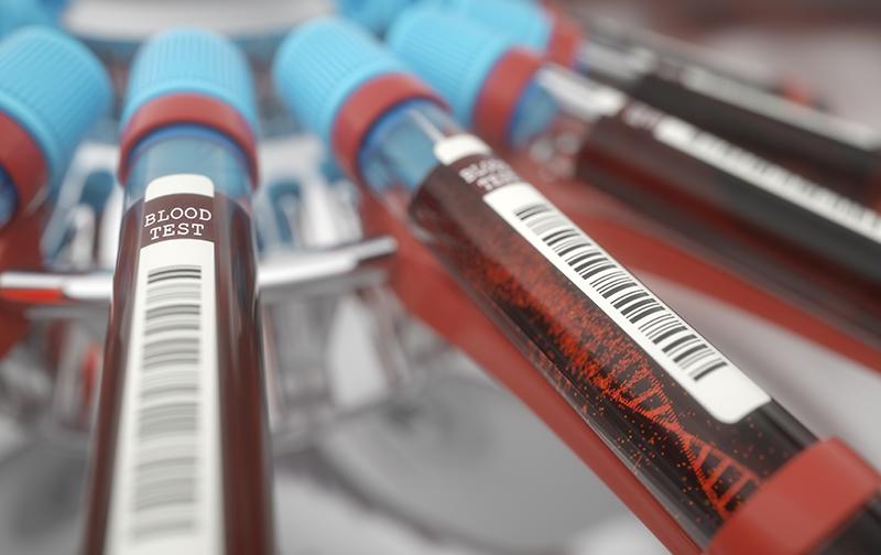 biomark diagnostics liquid biopsy test tubes with dna blood samples